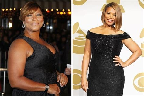 Celebrities You Forgot Had Weight Loss Surgery - Page 24