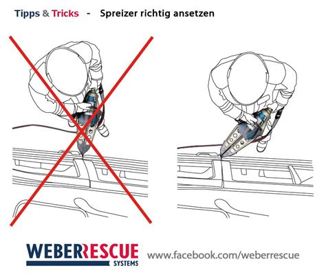 Tips and Trick: Spreader Arm Angles – Boron Extrication